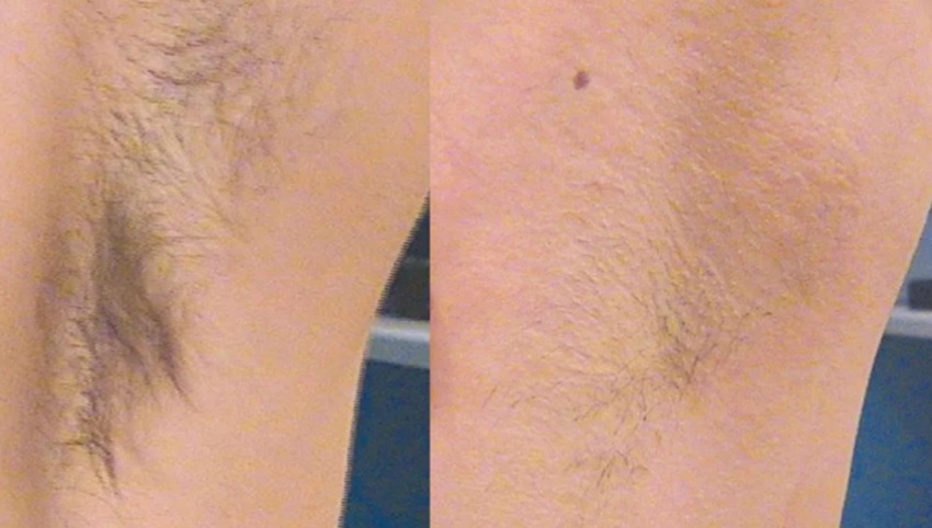 How to prepare your skin for armpit laser hair removal