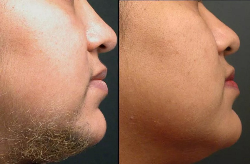 Chin laser hair removal specifications
