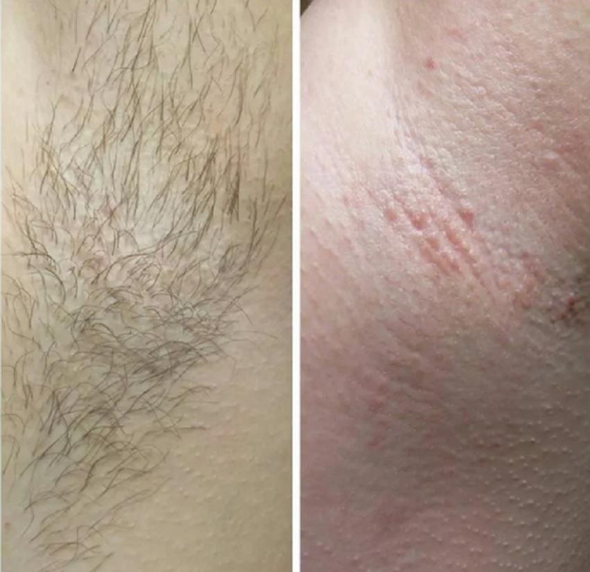 deep bikini laser hair removal