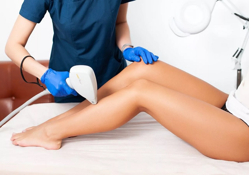 Laser hair removal for legs