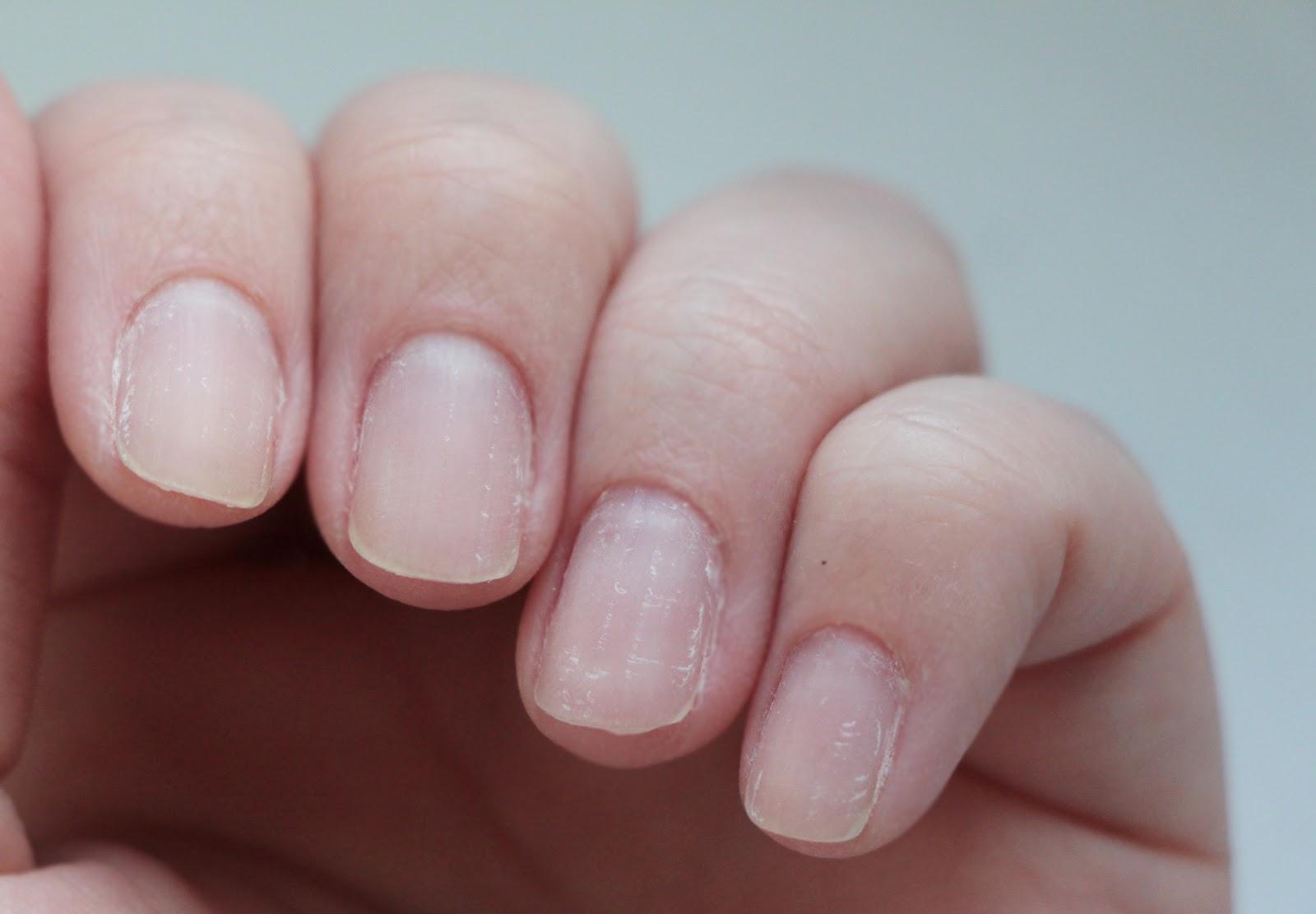 nail comes off