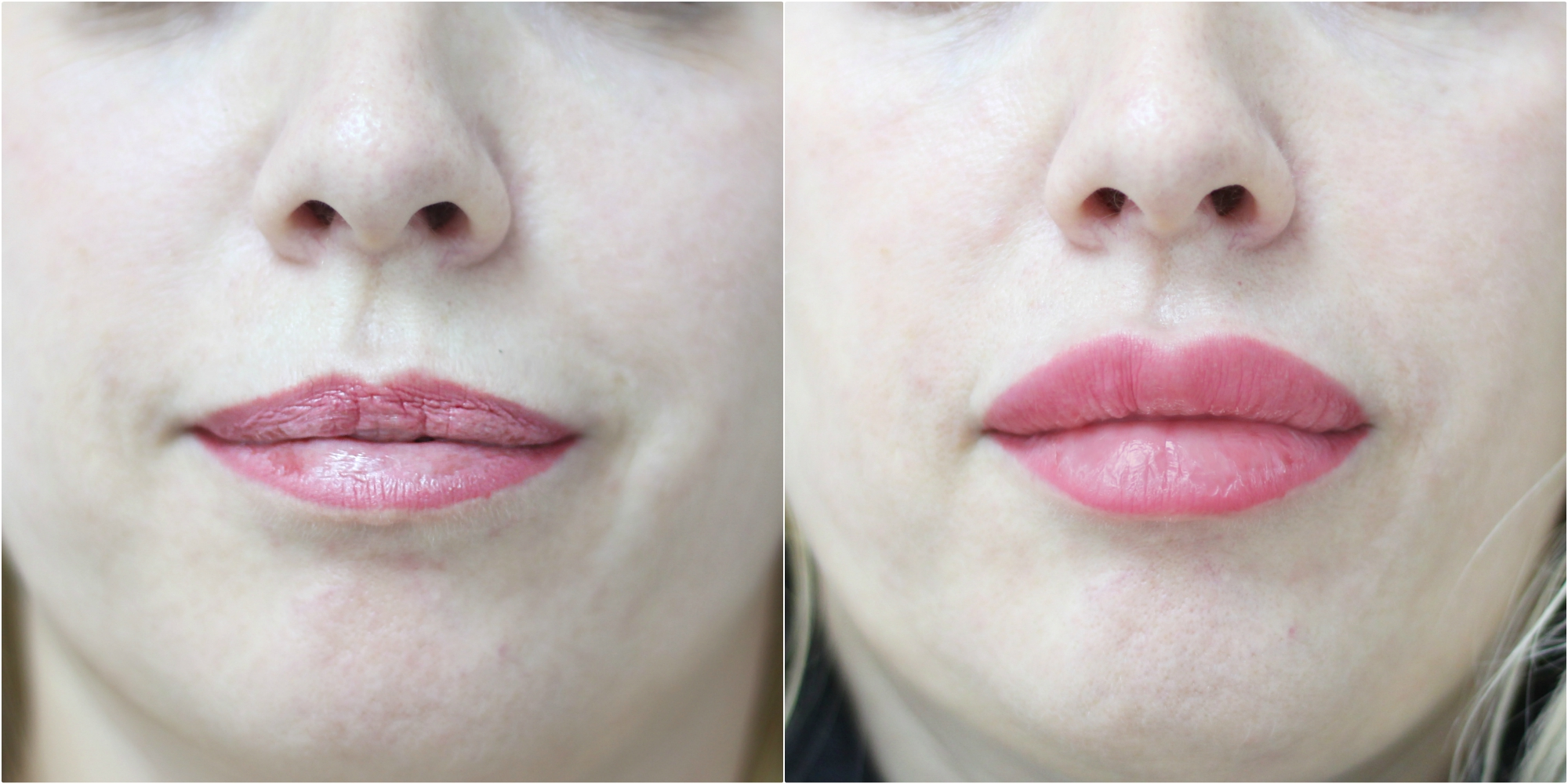 bruises appear after lip augmentation