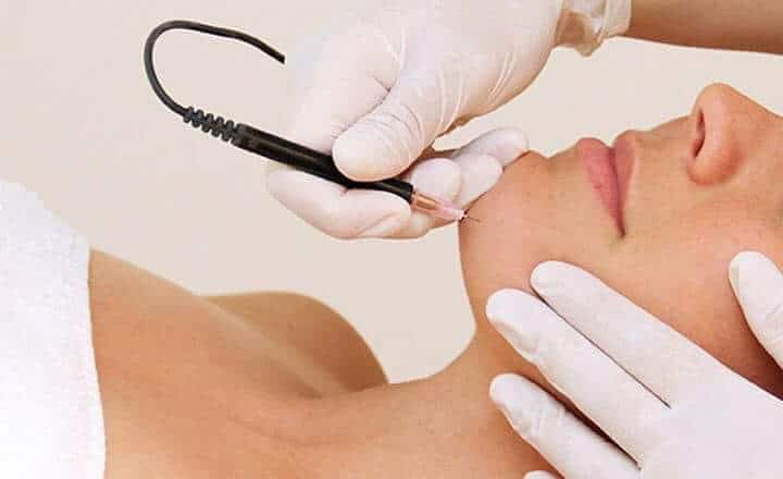 Electrolysis of the upper lip